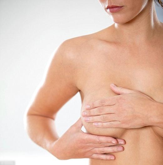 Bầu ngực phụ nữ sẽ chảy xệ dần theo mức độ lão hóa của làn da