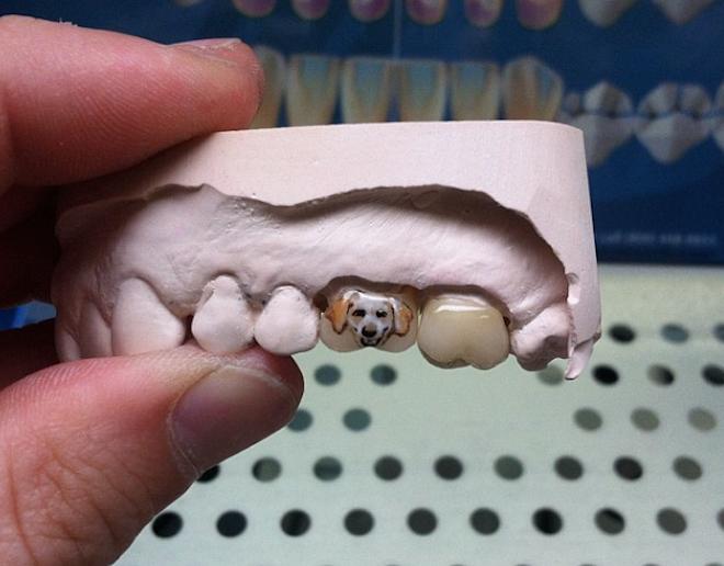 Thay vì ghi dấu lên phần da thịt trên cơ thể, giới trẻ lại chuyển qua mốt xăm răng. Kiểu xăm này được đánh giá là khó thực hiện và chỉ có thể nhìn thấy khi cười, nói chuyện. (Ảnh Internet)