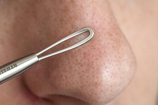 Nếu còn một số đầu mụn chưa tẩy ra được, bạn hãy dùng cây nặn mụn ấn nhẹ để nó chui ra. Tuy nhiên đừng nên nặn mụn thường xuyên sẽ làm tổn thương da mũi vốn rất mỏng manh nhé. (Ảnh: Internet)