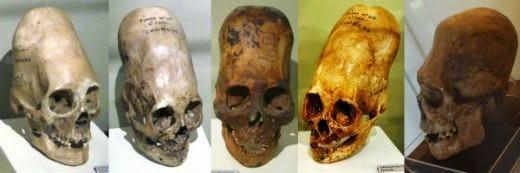 Những hộp sọ có phần sau dài bí ẩn. (Ảnh: Internet)