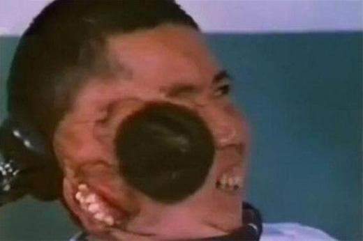 Khuôn mặt thứ hai củaChang Tzu Pingthì nằm bên phải đầu và chưa phát triển đầy đủ.(Ảnh: Internet)