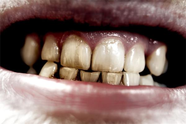 Mảng bám vi khuẩn bao quanh răng. (Ảnh: Internet)
