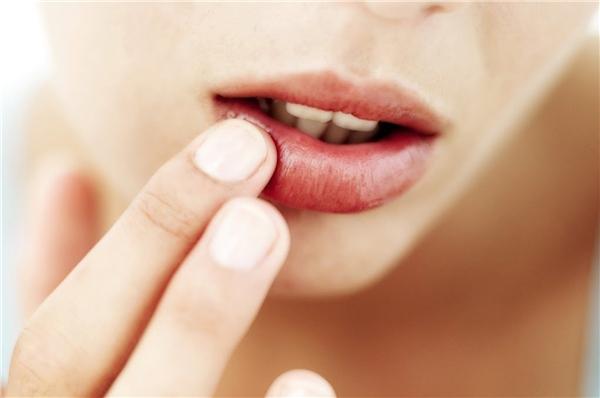 Miệng khô dễ dẫn đến sâu răng. (Ảnh: Internet)