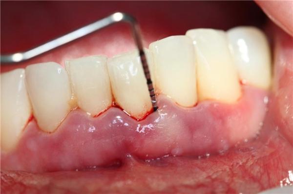 Dùng bản chải cứng có thể làm tụt nướuchân răng. (Ảnh: Internet)