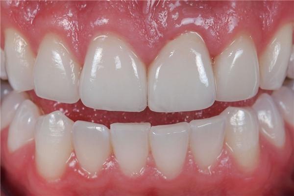 Đánh răng quá nhiều làm mòn men răng. (Ảnh: Internet)