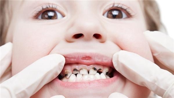 Trẻ em thường bị sâu răng. (Ảnh: Internet)
