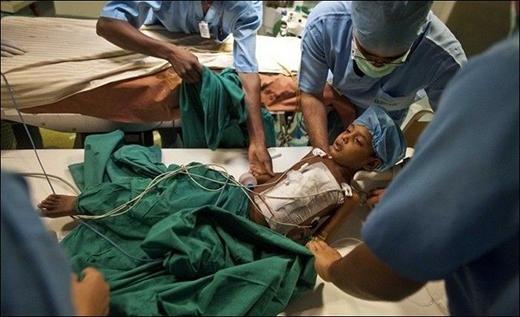 Cậu bé sau cuộc phẫu thuật với phần ngực băng bó (Ảnh: Internet)