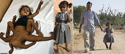 Bé Lakshmi Tatma trước và sau phẫu thuật, bé rất sung sướng khi được đến trường. (Ảnh: Internet)