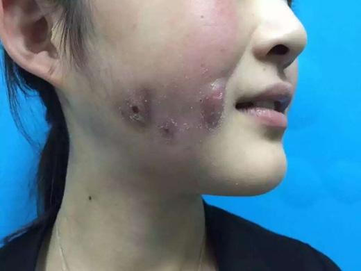 Sau một thời gian điều trị, vết thương đã lành nhưngcó khả năng để lại sẹo.(Ảnh:meirihaowen)