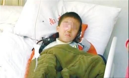 Cậu bé có nguy cơ bị mù vĩnh viễnmột bên mắt chỉ vì thứ tưởng chừng vô hại như gói hút ẩm (Nguồn Internet)