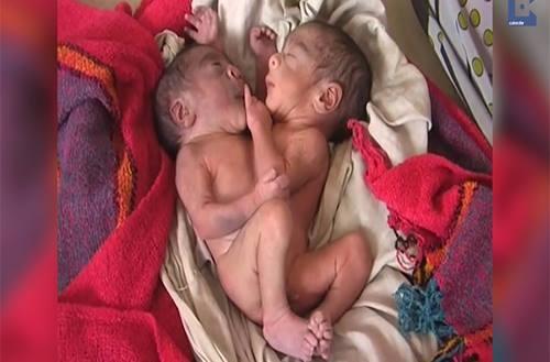 Cặp song sinh hai đầu bốn tay nhưng chỉ có một thân mình