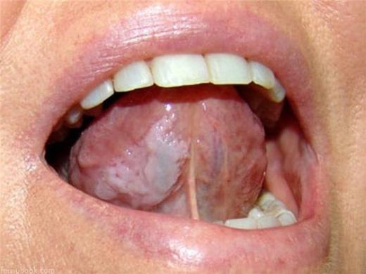 Ngứa: trên lưỡi xuất hiện những vết sưng phồng màu trắng và có cảm giác ngứa ngáy khó chịu. Bạn nên cẩn thận vì chúng có thể phát triển thành các tế bào ung thư.