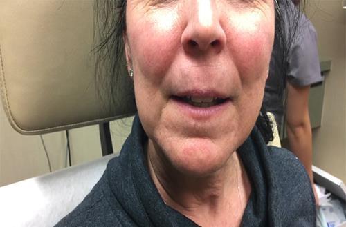 Sốc: Nặn mụn đầu đen to bằng viên sỏi trên mặt