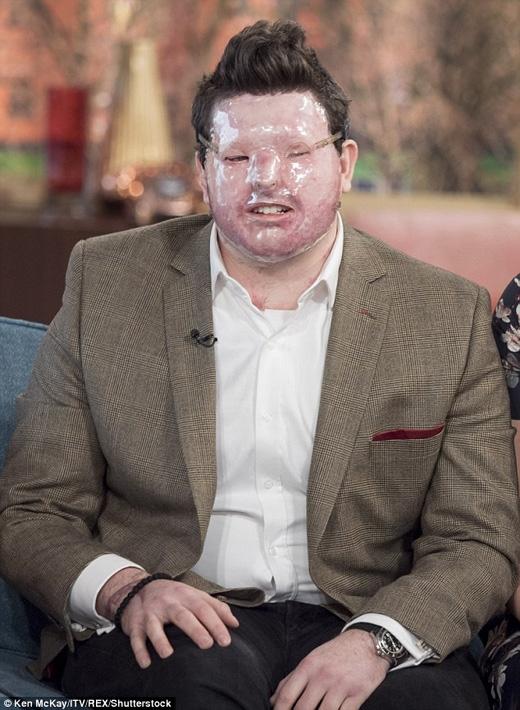 Andreas Christopheros, 30 tuổi, bị tạt axit cách đây hơn một năm. (Ảnh: Daily Mail)