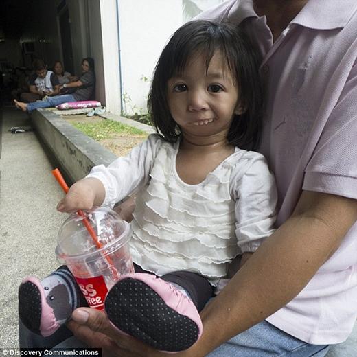 Amethyst sinh ra đã có miệng dính liền, bàn tay và bàn chân cũng không có. (Ảnh: Internet)