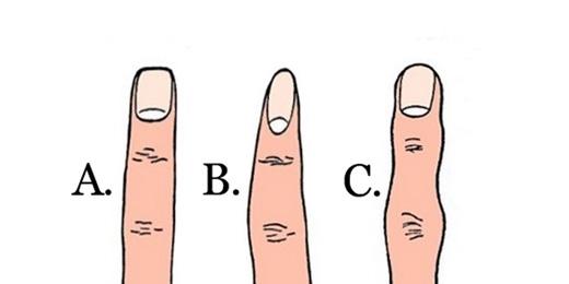 Ngón tay của bạn có hình dáng như thế nào? (Ảnh: Internet)