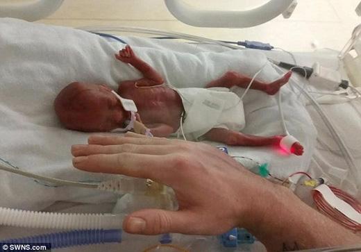 Kaci-Rose Cratchley ra đời lúc chỉ mới 23 tuần tuổi, tức sớm hơn 1 tuần so với chuẩn sinh non. (Ảnh: Daily Mail)