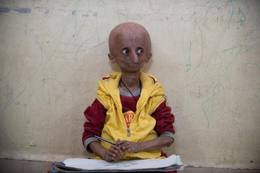 Cậu bé 15 tuổi Nihal Bitla mắc bệnh lão hóa, khiến cơ thể cậu già nhanh hơn người bình thường gấp 8 lần. (Ảnh: The Sun)