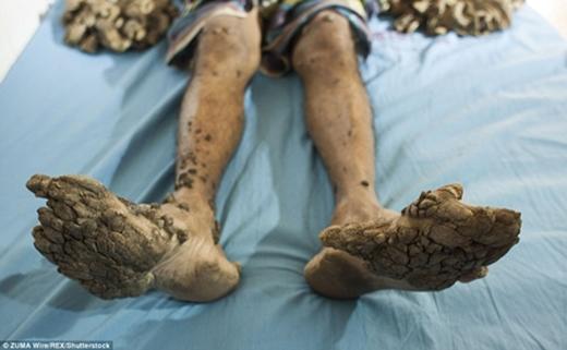 Hai tay và chân của Abul. (Ảnh: Internet)