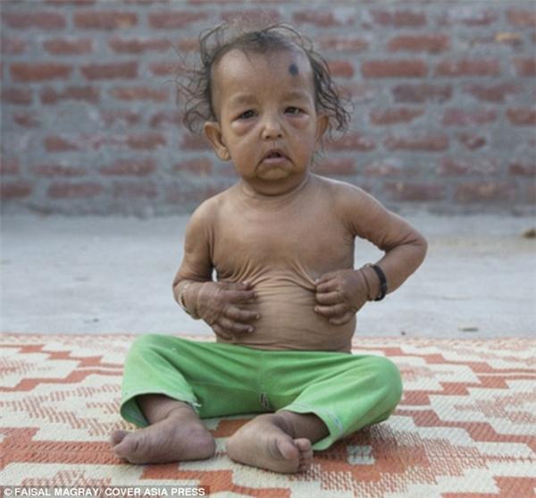 Trẻ em mắc hội chứng Progeria có progerin tích tụ trong nhiều tế bào, khiến chúng già đi nhanh hơn.(Ảnh: Daily Mail)