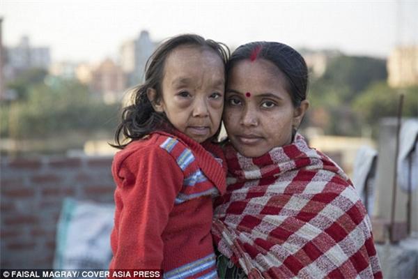 Trên thế giới, cứ 4 triệu trẻ em được sinh ra thì sẽ có 1 ca mắc bệnh này. (Ảnh: Daily Mail)