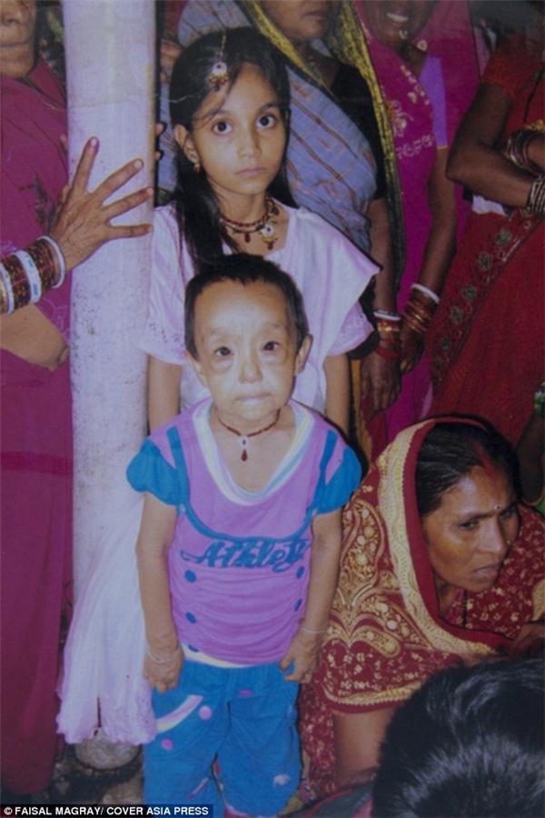 Anjali hoàn toàn khác biệt so với bạn bè, từ gương mặt đến cơ thể.(Ảnh: Daily Mail)