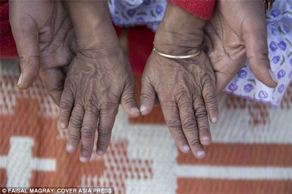 Đôi bàn tay nhỏ nhắn nhưng nhăn nheo như một cụ già của Anjali.(Ảnh: Daily Mail)