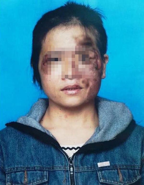 Những vết thương trên mặt chị Nguyễn Thị H. (Ảnh: Internet)