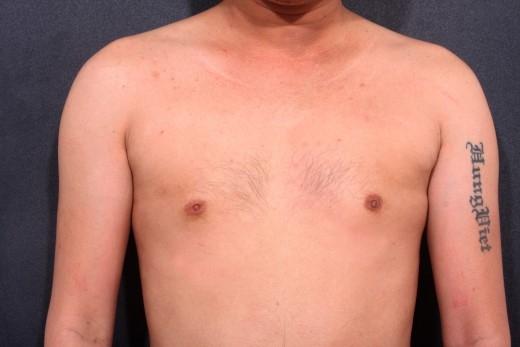 """Hình ảnh vòng ngực """"lép"""" của chuyên gia trang điểm Hùng Việt lúc chưa phẫu thuật."""