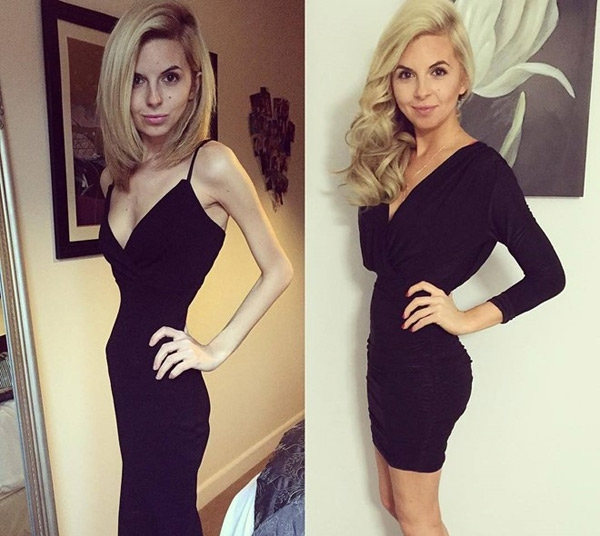 Hayley trước và sau quá trình điều trị rối loạn ăn uống. (Ảnh: Instagram NV)