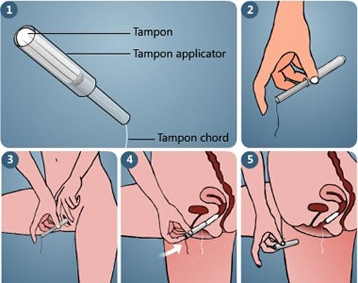 Sử dụng tampong không đúng cách đôi khi cũng gây nguy hiểm.(Ảnh: Internet)