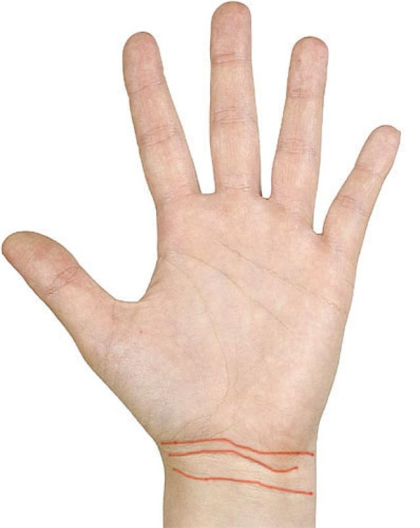 Đường phú quý: càng nhiều đường cổ tay thì bạn càng có nhiều tiền, càng giàu sang phú quý. (Ảnh: Internet)
