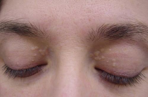 Nếu bạn thấy mắt nhỏ hơn hoặc xuất hiện các cục u trắng (vàng) xung quanh mí mắt thì đây là một triệu chứng nghiêm trọng của bệnh tim. (Ảnh: Internet)