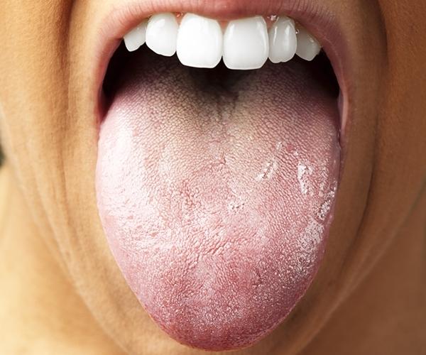 Nếu thấy một lớp màu trắng, vàng hoặc da cam trên lưỡi, bạn có nguy cơ bị viêm hay loét dạ dày. (Ảnh: Internet)