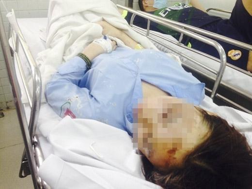 Nạn nhân H đang điều trị tại bệnh viện Chợ Rẫy TP.HCM