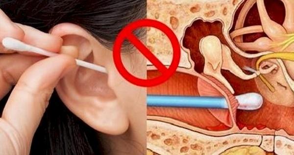 Mỗi năm ở Anh có tới 7.000 người tới bệnh viện do gặp thương tích từ việc ngoáy tai. (Ảnh: Internet)