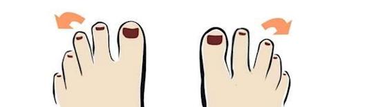 Ngón chân thứ 3 nghiêng ra ngoài. (Ảnh: Internet)
