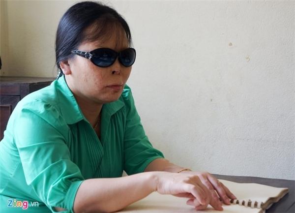 Cô giáo Lê Thị Ánh Dương bị mù vĩnh viễn, khuôn mặt biến dạng sau vụ tạt axít năm 2001. Ảnh: Nguyễn Dương.