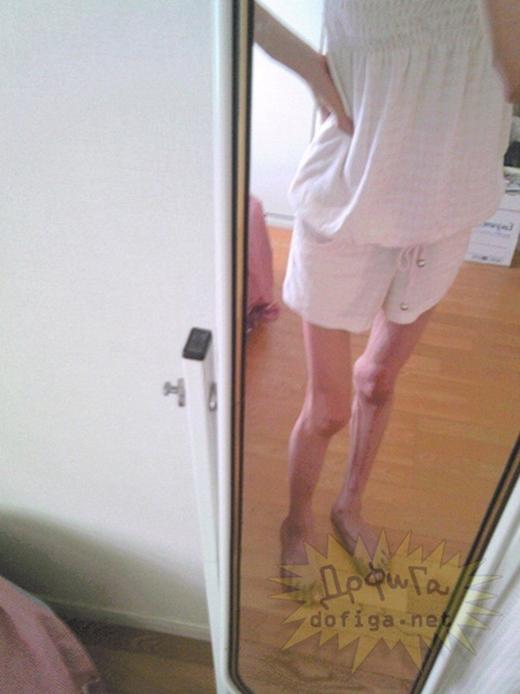 Đôi chân khẳng khiu như que tăm