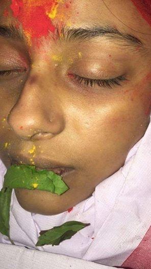 Hình ảnh Pratyusha với nhiều vết thâm tím trên mặt khi cô qua đời