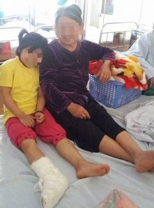 Cháu N đang nằm điều trị tại Khoa Ngoại, Bệnh viện Gang Thép Thái Nguyên.