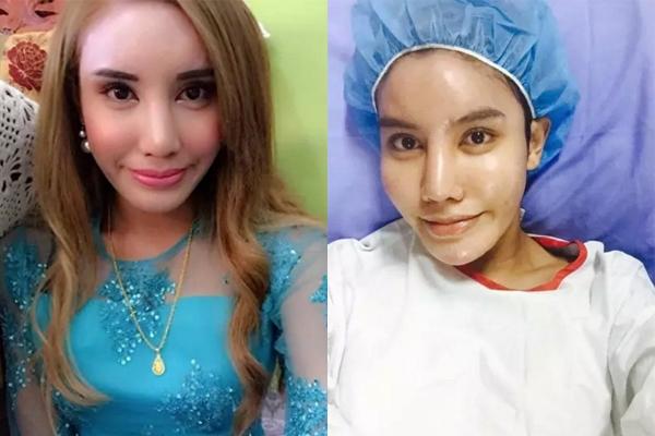 Được biết, trước đây,Safiuddin chỉ nâng ngực và tiêm hormone nữ màchưa phẫu thuật phần thân dưới. Vì thế, khi muốn trở lại làm nam giới, Safiuddin chỉ cần cắt bỏ ngực giả và tiêm hormone nam. (Ảnh: Internet)