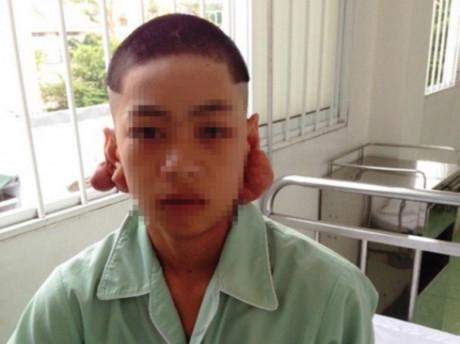 Bệnh nhân Nguyễn Văn Thắng với đôi tai kì dị lúc nhập viện.