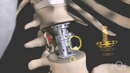 Những chiếc xương gãy vụn được chữa như thế nào?