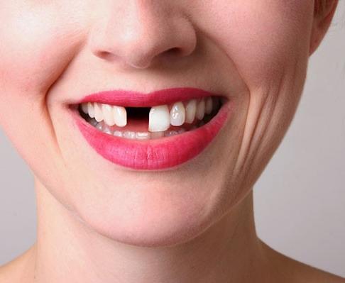 """Bỗng nhiên đi dạo quảng trường mà lại bị mất răng""""vô lí"""". (Ảnh Internet)"""