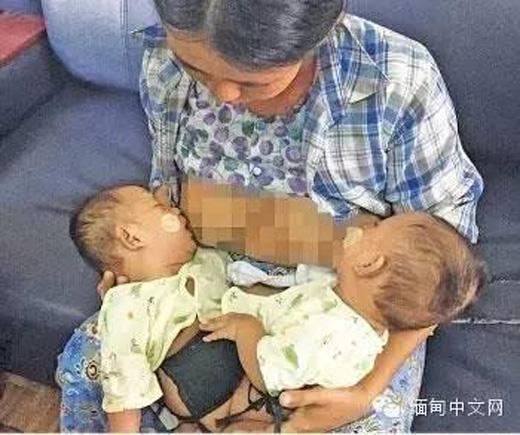 Gia đình hai đứa trẻ sơ sinh dị tật đối diện với muôn vàn khó khăn. (Ảnh: Internet)