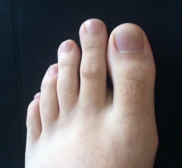 Ngón chân thứ hai thậm chí còn cao hơn cả ngón chân cái? (Ảnh: worthytoshare)