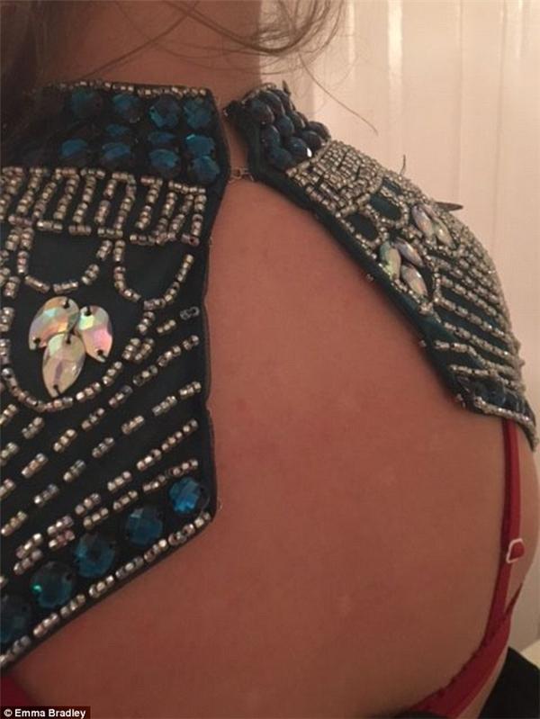 Thế là thân sau của chiếc đầm lại tạo một khoảng hở vô duyên trên lưng Chloe. (Ảnh: Internet)