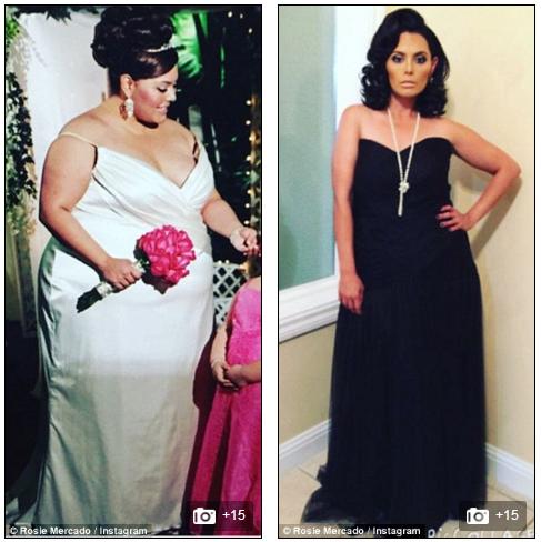 Việc giảm cân quá nhanh khiến Rosie phải đối mặt với vấn đề da thừa.