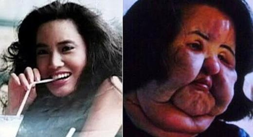 Khuôn mặt biến dạng hoàn toàn sau phẫu thuật.